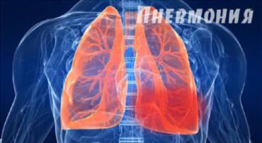 Профилактика внебольничной пневмонии